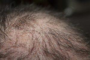 caduta-dei-capelli-foto2
