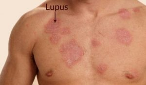 lupus eritematoso sistemico foto1