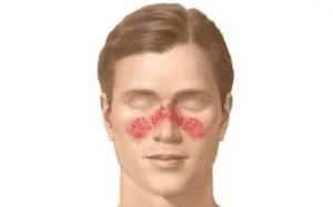 lupus eritematoso sistemico foto2