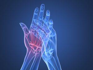 artrite reumatoide foto1