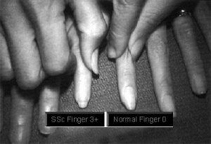 sclerodermia foto1