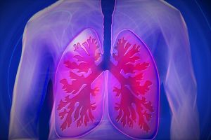 enfisema polmonare foto1