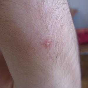 acne vulgaris cause prevenzione foto1