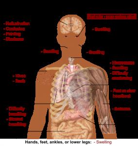 ossicodone-effetti-analgesico-foto2