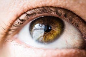 ipermetropia anomalia bulbo oculare foto2