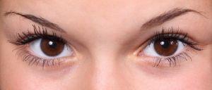 cheratocono infiammazione cornea cause foto2