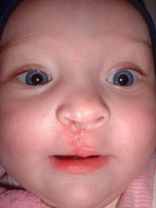 labiopalatoschisi malformazione cavita orale foto2