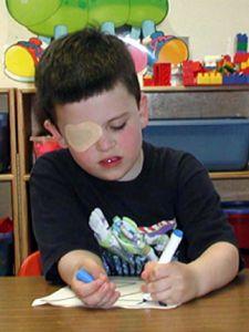 ambliopia occhio pigro sintomi cause foto1