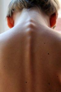 mappatura nei cancro della pelle foto1