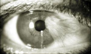 pterigio disturbo bulbo oculare foto2