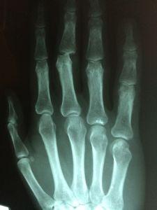 rizoartrosi rimedi cure patologia diffusa foto2